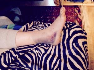 Pintarelli caviglia
